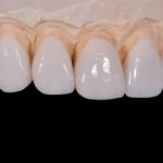 Kann man mit Zahnimplantaten alles bedenkenlos essen?